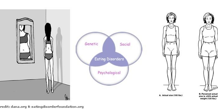anorexia nervosa term paper